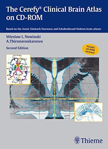 The Cerefy Clinical Brain Atlas on CD-ROM