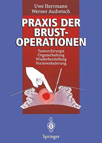 Praxis der Brustoperationen: Tumorchirurgie _ Organerhaltung _ Wiederherstellung _ Formveränderung
