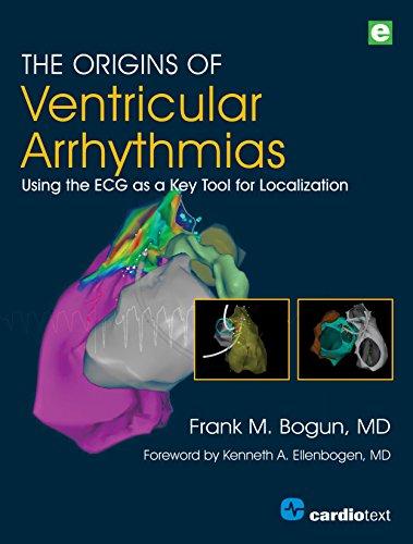 The Origins of Ventricular Arrhythmias: Using the ECG as a Key Tool for Localization