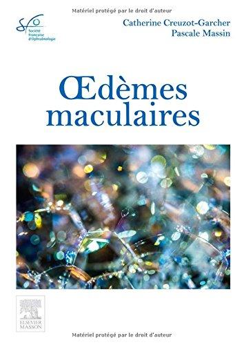 Oedèmes Maculaires: Rapport Sfo par Catherine Creuzot-Garcher, Pascale Massin