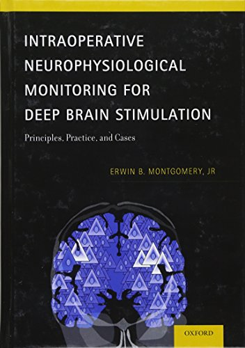 Intraoperative Neurophysiological Monitoring for Deep Brain Stimulation: Principles, Practice, and Cases