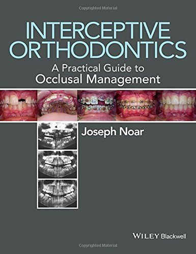 Interceptive Orthodontics: A Practical Guide to Occlusal Management by Joseph Noar (2014-09-15)