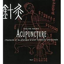 Acupuncture : L'histoire et la pratique d'une médecine ancestrale