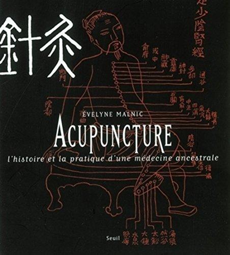 Acupuncture : L'histoire et la pratique d'une mdecine ancestrale