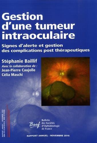Gestion d'une tumeur intraoculaire : Rapport annuel des sociétés d'ophtalmologie de France