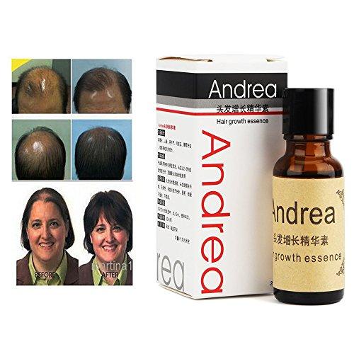 Andrea 20ml Fast Hair Growth Essence Alopecia 20ml Hair Loss Liquid Ginger Shampoo for Sunburst Yuda Hair Growth Pilatory Oil (1 Bottle)