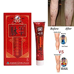 Hiveseen Varicose Veins Treatment Cream Natural Treatment on Legs, Removal Spider Vein Cream Removal that Works Relief Phlebitis Angiitis Inflammation Blood Vessel Health Care (30g)