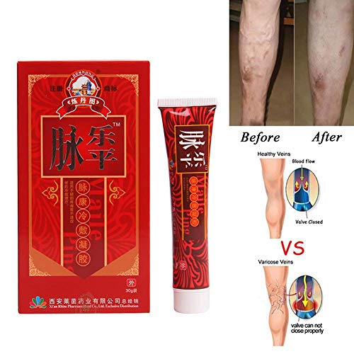 Hiveseen Krampfadern Creme für die Beine, Krampfadern Besenreiser Entfernen natürlich behandeln Relief Phlebitis Angiitis Entzündung...