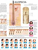 Alopecia men and women e-chart: Quick reference guide (English Edition)