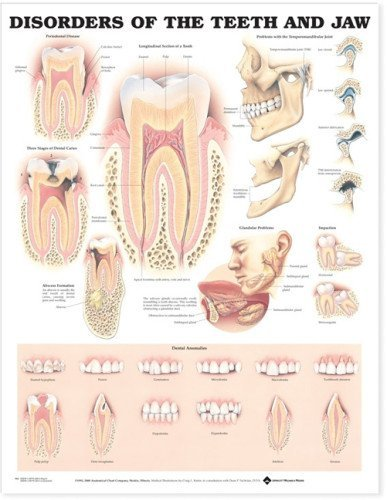 Disorders of the Teeth and Jaw Anatomical Chart by Anatomical Chart Company (2004-05-06)