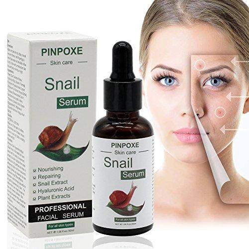 Pickel Narben, Akne Serum, Rein Natürlich, Pflegt Die Haut mit Schnecken Serum, Anti Pickel Serum...