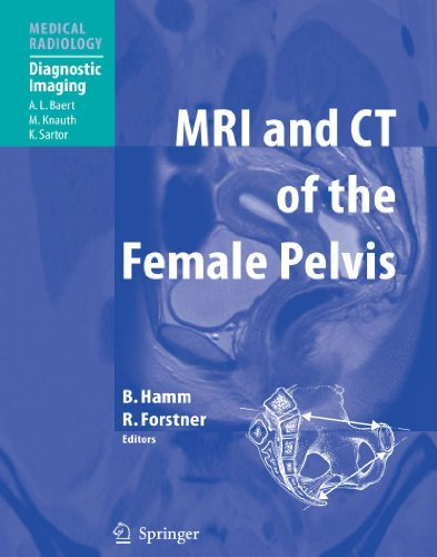 MRI and CT of the Female Pelvis (Medical Radiology) (2010-07-13)