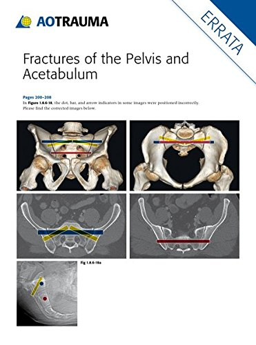 Fractures of the Pelvis and Acetabulum por Marvin Tile