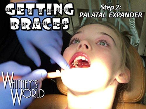 getting-braces-step-2-palatal-expander