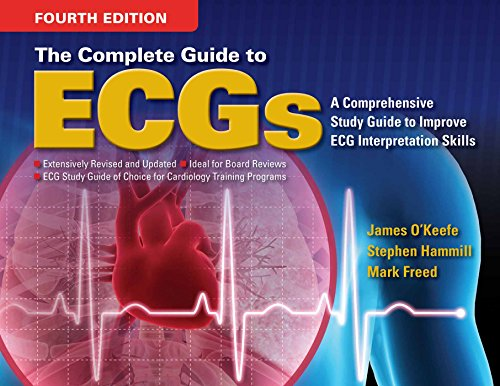 Read Pdf The Complete Guide To Ecgs Ebook Library By James H Pdf987