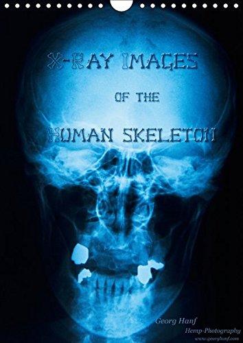 X-Ray Images of the Human Skeleton (Wandkalender 2017 DIN A4 hoch): Kalender mit Röntgenbildern in Farbe. (Monatskalender, 14 Seiten ) (CALVENDO Gesundheit) - Kalender Anatomie