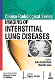 Clinico Radiological Series: Imaging of Interstitial Lung Diseases