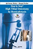 Step By Step High Tibial Osteotomy By Hemicallotasis With Dvd Rom