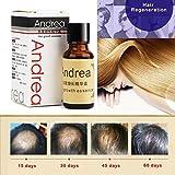 Best Repousse Cheveux Huiles - Rapide Essence de repousse des cheveux, perte de Review