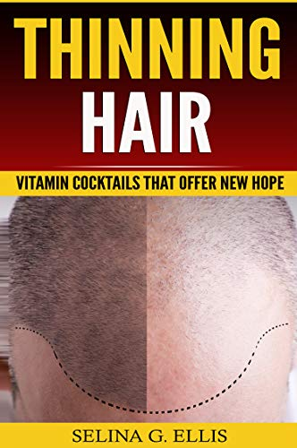 Thinning Hair: Vitamin Cocktails That Offer New Hope (English Edition)