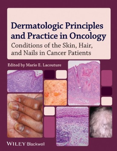 Dermatologic Principles and Practice in Oncology: Conditions of the Skin, Hair, and Nails in Cancer Patients by Mario E. Lacouture (31-Jan-2014) Hardcover