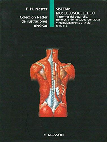 Sistema Musculosquelético. Trastornos del Desarrollo, Tumores, Enfermedades Reumáticas y Reemplazamiento Articular (Colección Netter de Ilustraciones Médicas, Tomo 8.2)