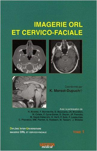 Imagerie ORL et cervico-faciale : Tome 1