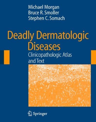 Deadly Dermatologic Diseases: Clinicopathologic Atlas and Text 2007 Edition by Morgan, Michael B., Smoller, Bruce R., Somach, Stephen C. (2007) Hardcover