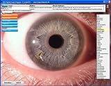 Produkt-Bild: Augendiagnose / Augendiagnostik Arbeitsprogramm DA8 für die Praxis Software CD