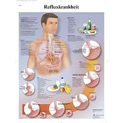 3B Scientific Lehrtafel laminiert - Refluxkrankheit