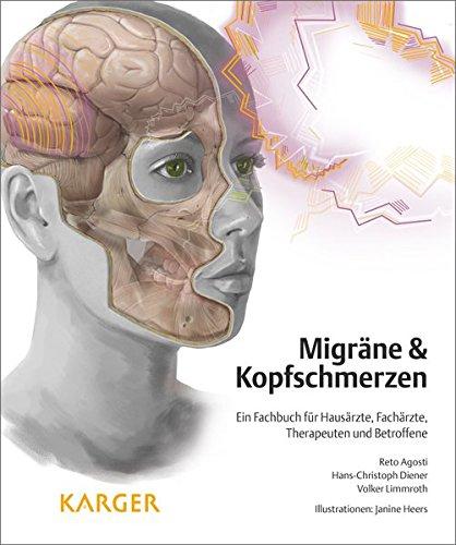 Migräne und Kopfschmerzen: Ein Fachbuch für Hausärzte, Fachärzte, Therapeuten und Betroffene Illustrationen: J. Heers.