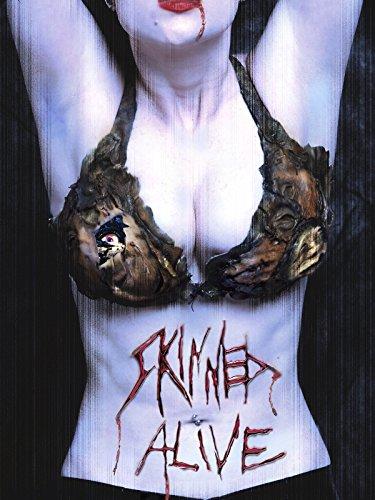 skinned-alive-ov