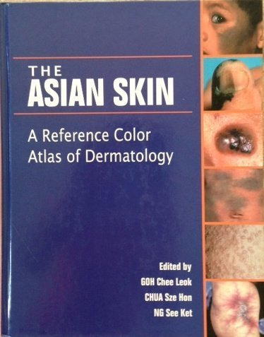 The Asian Skin: A Reference Color Atlas of Dermatology by Goh Chee Leok (2005-01-01)