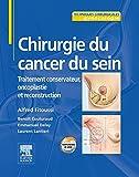 Chirurgie du cancer du sein - Traitement conservateur, oncoplastie et reconstruction