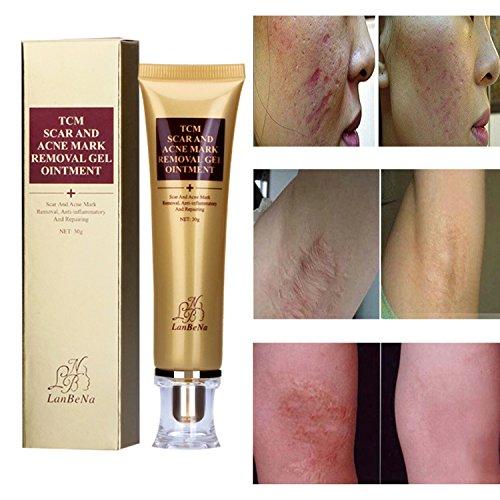 ROMANTIC BEAR Points d'acné Scar Spots Marks Vergetures Removal Gel Crème Réparation de la peau (A)