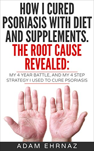 Read How I Cured Psoriasis With Diet And Supplements  The