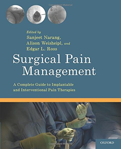 Surgical Pain Management: A Complete Guide to Implantable and Interventional Pain Therapies -