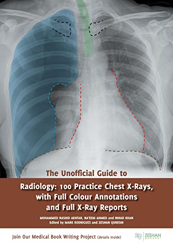 The Unofficial Guide to Radiology: 100 Practice Chest X-Rays (Unofficial Guides)