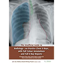 The Unofficial Guide to Radiology: 100 Practice Chest X-Rays (Unofficial Guides to Medicine)