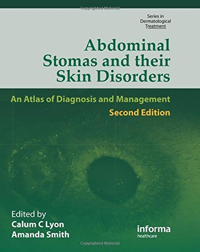 Abdominal Stomas and Their Skin Disorders,Second Edition (Series in Dermatological Treatment) (2009-12-23)