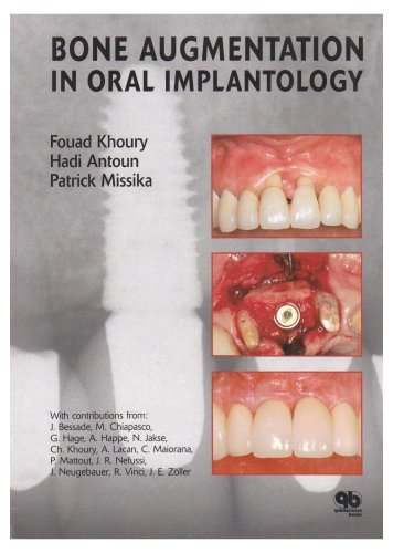 Bone Augmentation in Oral Implantology by Fouad Khoury (1-Dec-2006) Hardcover