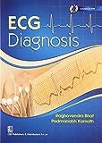 ECG Dianosis