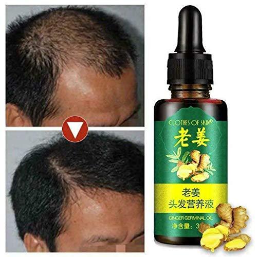 Zooarts 7 Tage Haarwachstum Anti-Haarverlust Serum Ingwer ätherisches Öl 30 ml -
