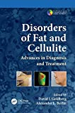 Disorders of Fat and Cellulite: Advances in Diagnosis - Best Reviews Guide
