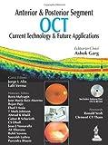 Anterior & Posterior Segment OCT: Current Technology & Future Applications