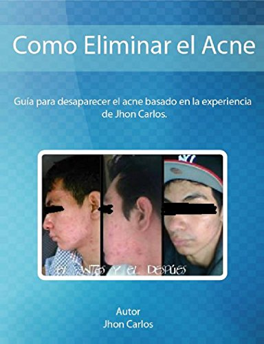 Descargar Libro Como Eliminar el Acne basado en la Experiencia de Jhon Carlos: Guia para desaparecer el acne y sus secuelas con metodos naturales de Jhon Carlos