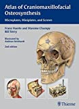 Atlas of Craniomaxillofacial Osteosynthesis: Microplates, Miniplates,and Screws