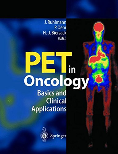 PET IN ONCOLOGY