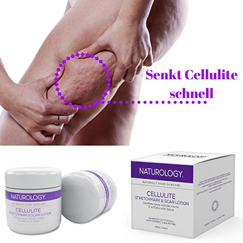 Naturology Cellulite -Stretch Marks – Scar Removal Cream – The Best Most Advanced 3 in 1 Treatment – Unique Lotion Formulated to Get Rid Of Dimples Pregnancy Marks & Acne Scars