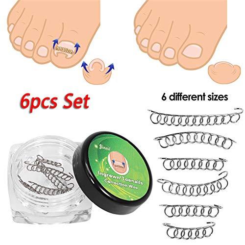 Clifcragrocl Zehenspreizer, 6 x 12 Stück, zur Korrektur von eingewachsenen Zehennägeln, zur Fußpflege und Pediküre, 6 Stück